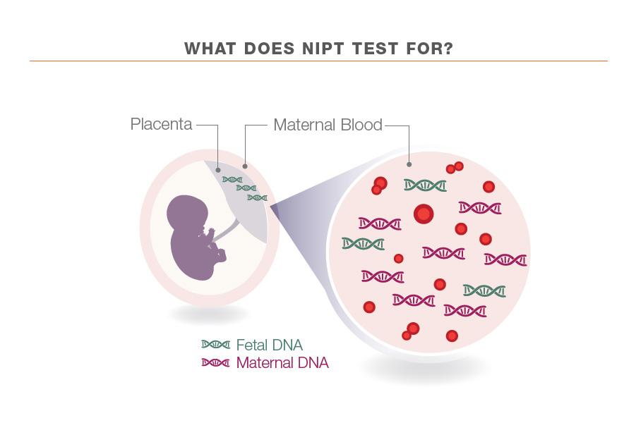 NIPT screening